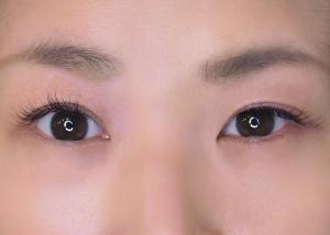 目が左右非対称